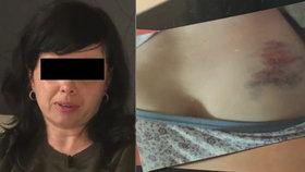 """""""Jste jenom hysterka,"""" řekli lékaři ženě se zlomenou páteří. Nataša trpěla měsíc v bolestech"""