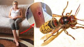Těhotnou alergičku bodla vosa: Veroniku odmítal lékař ošetřit, v noze má teď díru!