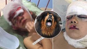 Máma Lucinky (9), kterou potrhala doga, promluvila:  Zmrzačili mi dítě, budu bojovat!