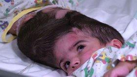 Holčičky (2) se narodily se spojenou lebkou. Stovka lékařů je oddělovala 50 hodin