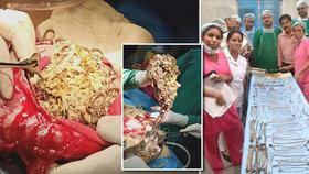 Šokující nález lékařů: Z žaludku ženy vyndali šperky za milion korun!