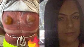 Šílené spáleniny z potápění: Žena si z dovolenkového ráje přivezla obří puchýře