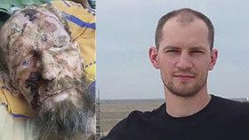 """Muž """"uvězněný v medvědím brlohu"""" zemřel: Zabila ho otrava krve po vážné infekci"""