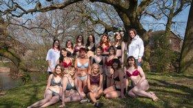 Jsme normální! 12 žen s vývodem zapózovalo pro kalendář, podívejte se na ty fotky!