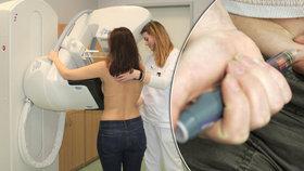 Čechy zabíjí rakovina a cukrovka. Lékaři hlásí dvojnásobný nárůst nemocných za 30 let