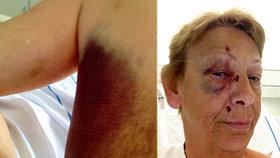 Dovolená hrůzy: Velbloudi na Kanárech podupali seniorku!