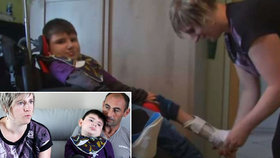 Chlapec snědl burger z německého masa a ochrnul: Po  osmi letech zemřel na zástavu srdce
