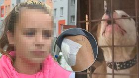 Nikolku (11) zle potrhal bulteriér! Majitelce zvíře vzali. Co pak řekla o rodině pokousané dívky?