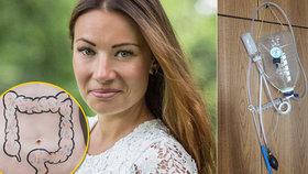 Petra (29) se z depresí vyléčila fekální transplantací! Svou rodinu tak ale kurýrovat nemůže! A řekla proč...