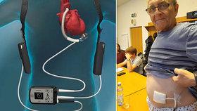 Podnikání ho skoro zabilo: S nemocným srdcem Janovi (64) pomáhá nejmodernější strojek na světě