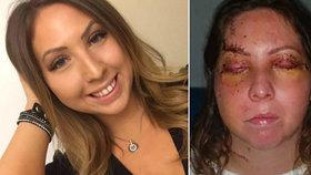 Brutální útok v dovolenkovém ráji: Krásnou letušku (29) zbili v jejím hotelovém pokoji!