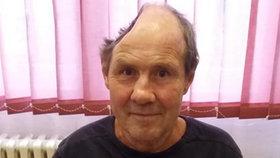 Jaroslav (62) má jen půlku lebky! Částečně ochrnul, skončil na ulici. Azylový dům mu chce pomoct
