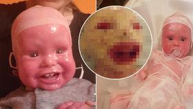 Michal (2) se narodil bez kůže! Lidé si chlapce se vzácnou kožní nemocí pletou s panenkou