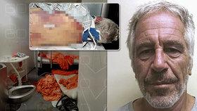 Šokující záběry z pitvy zvrhlého miliardáře Epsteina: Příběh o sebevraždě dostává trhliny!