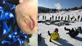 Syna mu zranila uvolněná lyžařská branka: Namísto pomoci mu lidé ještě vynadali!