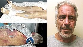 Posmrtné fotografie miliardáře Epsteina: Byla to vražda! Tohle jsou důkazy, ukázal patolog