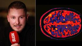 Homosexuál Tomáš (27) trpí roztroušenou sklerózou. Lékaři mu tvrdili, že má HIV