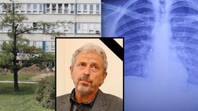 Zemřel primář Vítězslav Kolek (†66): Byl to světově respektovaný odborník na onemocnění plic