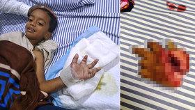 Chlapec (4) si usekl ruku sekačkou na trávu. Lékařům se ji povedlo přišít zpět
