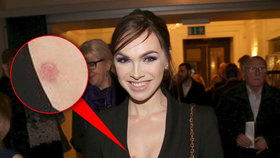 Kamila Nývltová šokovala jizvou na prsu! Přiznala, co hrozného se jí stalo