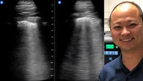 Koronavirus den po dni: Nakažený lékař o kašli, bolesti hlavy, průjmu a brufenech