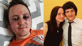 Bratra zavražděného Kuciaka (†27) brutálně napadli! Vytáhli ho z auta a zkopali