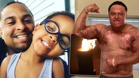 Táta od rodiny na grilovačce nalil benzín do ohně: S popáleninami po celém těle inspiruje ostatní