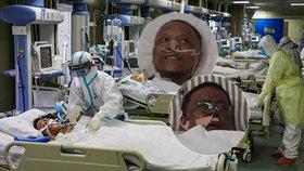 Nakazili se, až zčernali. Koronavirus lékařům poškodil játra a změnil pleť