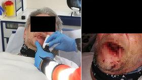 Pár centimetrů od tragédie: Muž na Kladensku chtěl dát pusu svému psovi, ten mu ukousl kus rtu!