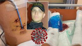 Záchranář Marek jel pomáhat seniorům, smetl ho neukázněný řidič! Skončil v krvi s protrženými plícemi a zlomeninami