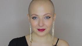 Anna Slováčková o rakovině: Proč hodlá dál nosit paruky?!