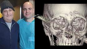 Muž utrpěl děsivý úraz: Hlavou mu projela silná železná tyč!