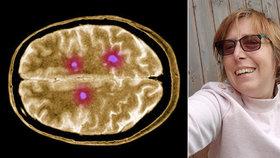 Samoživitelka Štěpánka (41) má roztroušenou sklerózu: Během pandemie nemohla pracovat