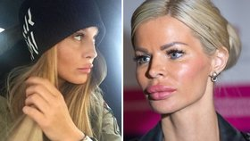 Celebrity před a po: Čí přifouklé rty jsou už za hranicí vkusu?