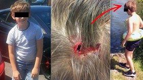 Chlapce napadla velká labuť: Udělala mu díru do hlavy!