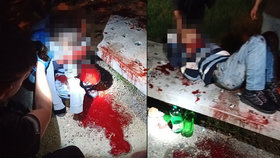 V kaluži krve ležel v Plzni cizinec: Ztrácel vědomí a nevěděl, co se mu stalo