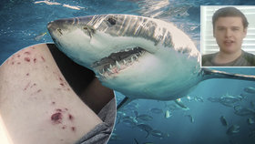 Chlapce napadl žralok jen kousek od pláže: Otec se vrhl do boje o život svého dítěte