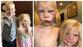 Šestiletý chlapec zachránil sestru před útokem psa. Na obličeji má 90 stehů!