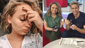 Hvězda Snídaně s Novou odhalila bolestivé tajemství: Loni jsem si prošla peklem!
