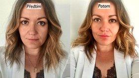 Vyzkoušeno: Zvětšení rtů kyselinou hyaluronovou mi pomohlo ke krásnějšímu úsměvu