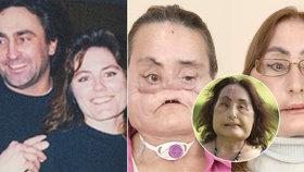 Zemřela první žena, které transplantovali tvář. Manžel ji střelil brokovnicí do obličeje