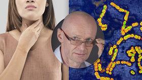 Bolest v krku v létě? Může to být zákeřná bakterie! Lékař promluvil o zdravotních rizicích