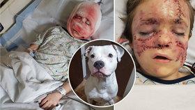 Rodinný pitbul Chaos potrhal obličej malému chlapci! Nic horšího jsme neviděli, popsali zdravotníci