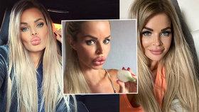 """Silvia Kucherenko se vzdala """"kačeřích pysků""""! Neuvěříte, jak nyní vypadá"""