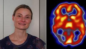 Záchvat migrény je stejný jako porodní bolesti: Karolína protrpěla celé těhotenství