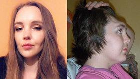 Kráska přišla při nehodě o čelo: Nedělejte v autě stejnou blbost jako já, varuje ostatní