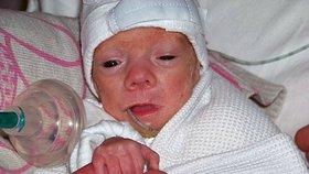 Předčasně narozenému Oliverkovi nedávali šanci na přežití: Drobeček všem vytřel zrak!