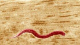 Syfilis pod mikroskopem, při neléčení může způsobit i smrt.