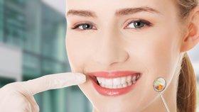 Zubní lékařka odpověděla na nejčastější dotazy z ordinace: Jak předejít kazům a můžete zuby bělit doma?