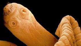 Tasemnice jsou nepříjemní paraziti, kteří můžou způsobit vážné zdravotní problémy